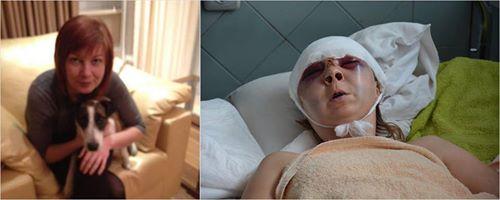 Накануне сессии Киевсовета зверски избита активистка, выступавшая за сохранение парка «Киото». Киев не промолчал